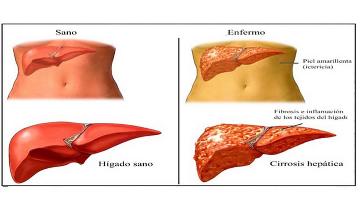 se puede tratar la cirrosis hepática