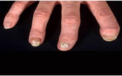 infección entre uñas y piel