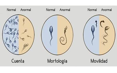 la disfuncion erectil causa esterilidad