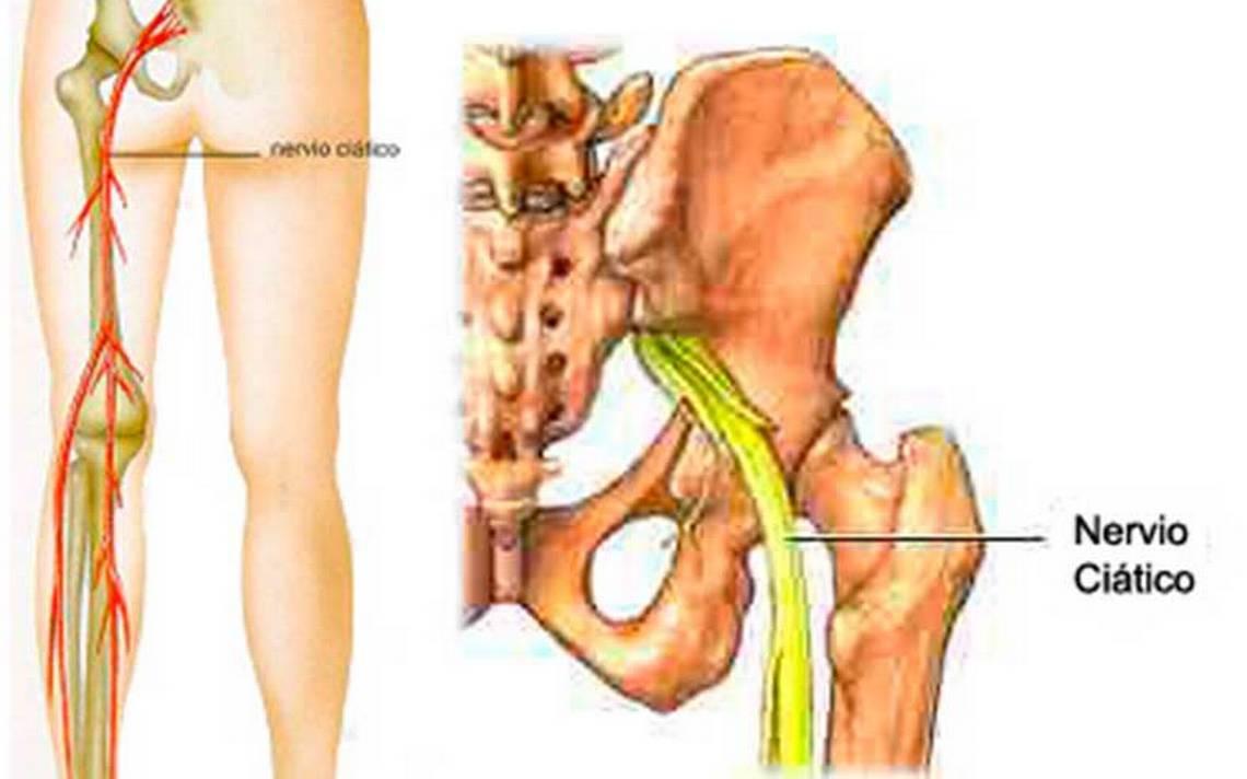ardor pélvico y dolor en las piernas