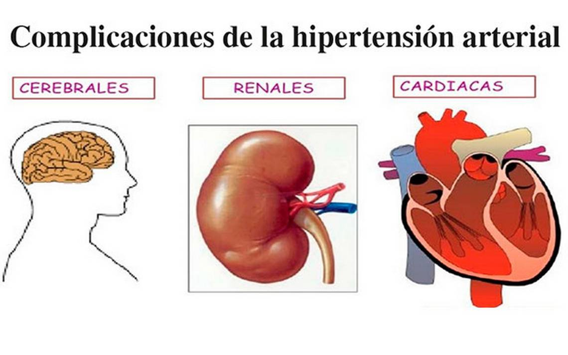 Video conferencia de hipertensión