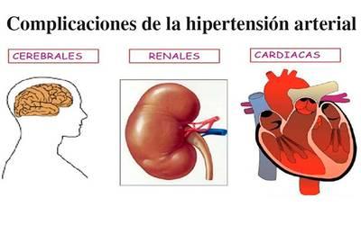 Tener síntomas de presión arterial alta