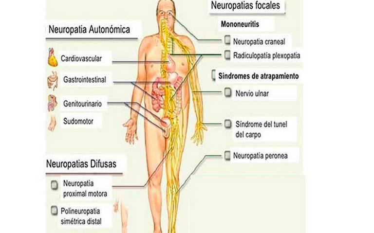 neuropatía motora diabetes mellitus
