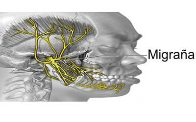 Ansiedad y migraña retiniana